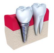 Find Dental Implants Surgeons in Dublin 7